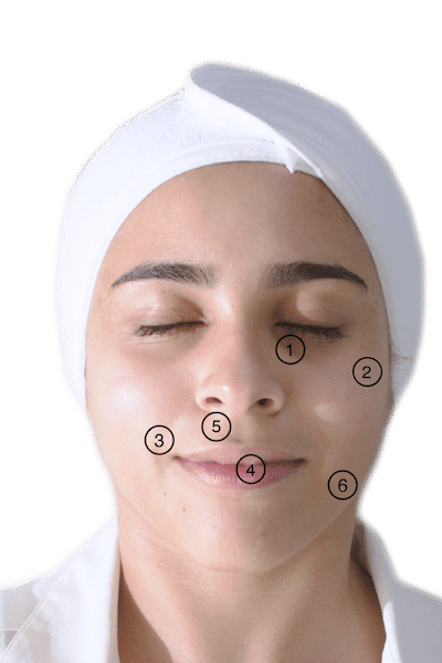 Image of female face indicating areas for dermal filler injection